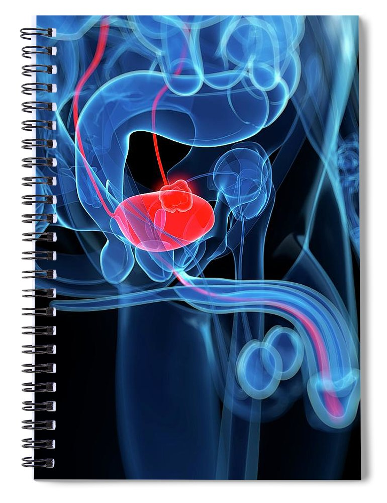 Bladder Cancer Spiral Notebook featuring the digital art Bladder Cancer, Artwork by Sciepro