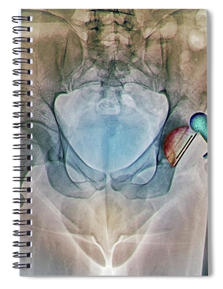 Artificial Spiral Notebook featuring the photograph Dislocated Hip Replacement, X-ray by Zephyr