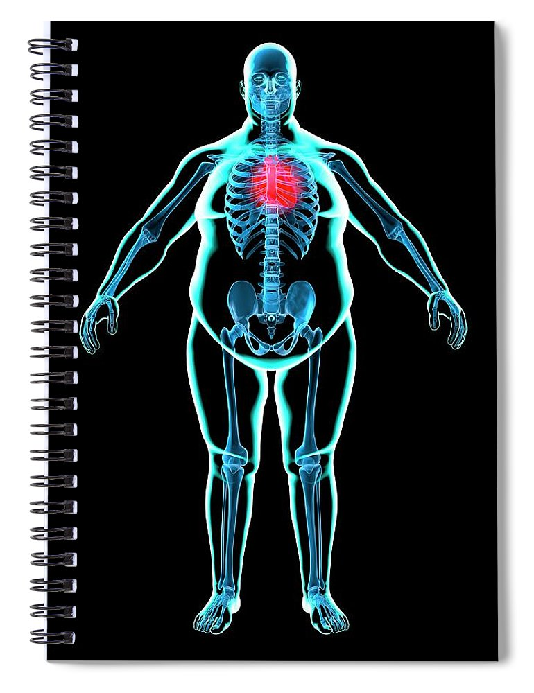 Risk Spiral Notebook featuring the digital art Obese Mans Heart, Artwork by Science Photo Library - Roger Harris