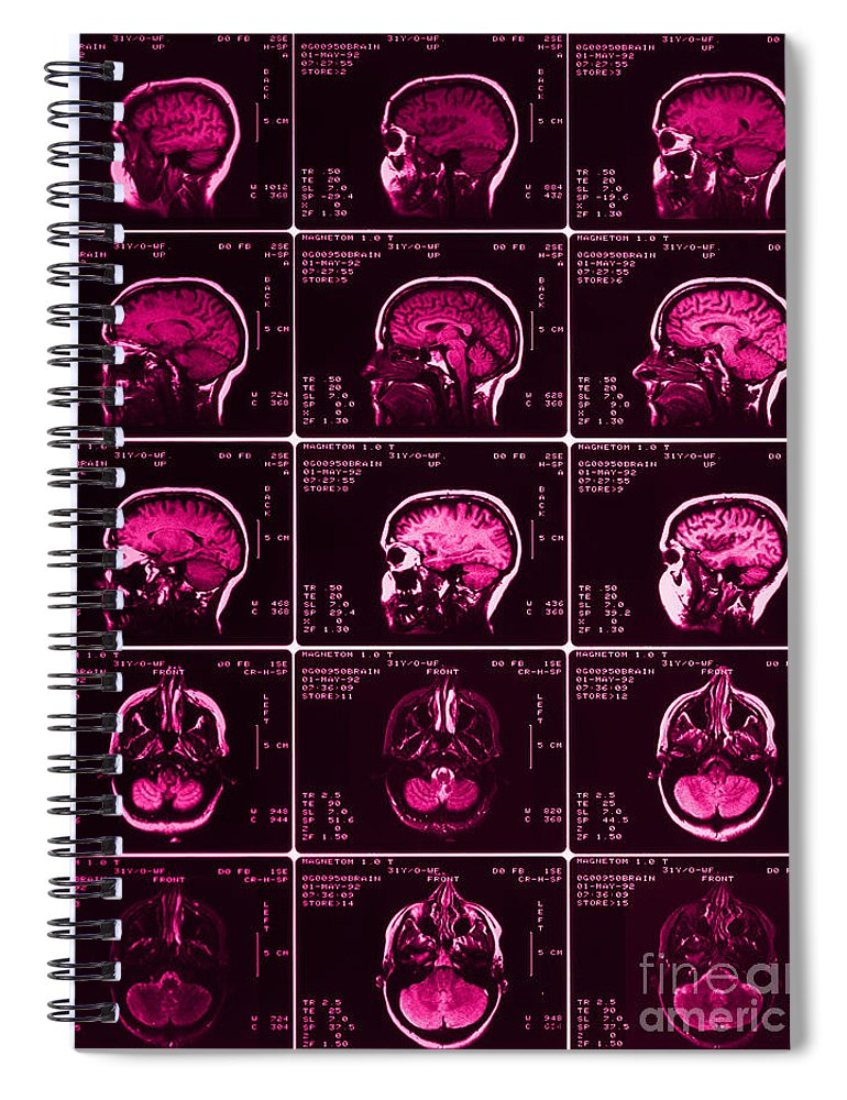 Brain Spiral Notebook featuring the photograph Mri Of Normal Brain by Science Source