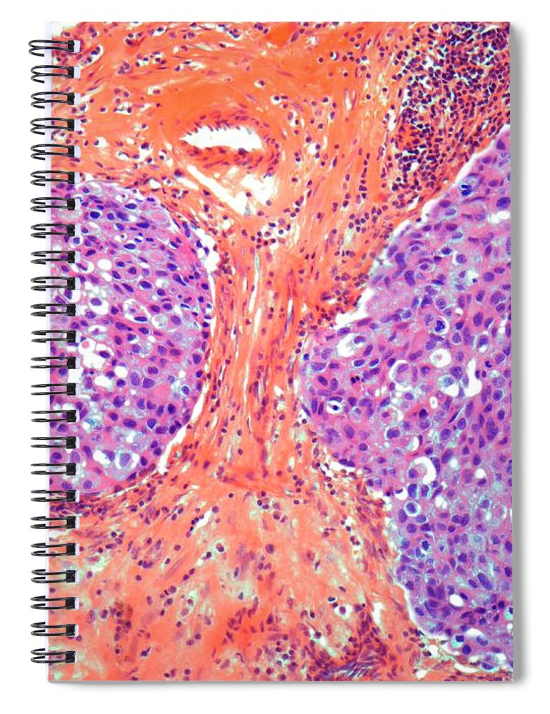 Anatomy Spiral Notebook featuring the digital art Breast Cancer, Light Micrograph by Steve Gschmeissner