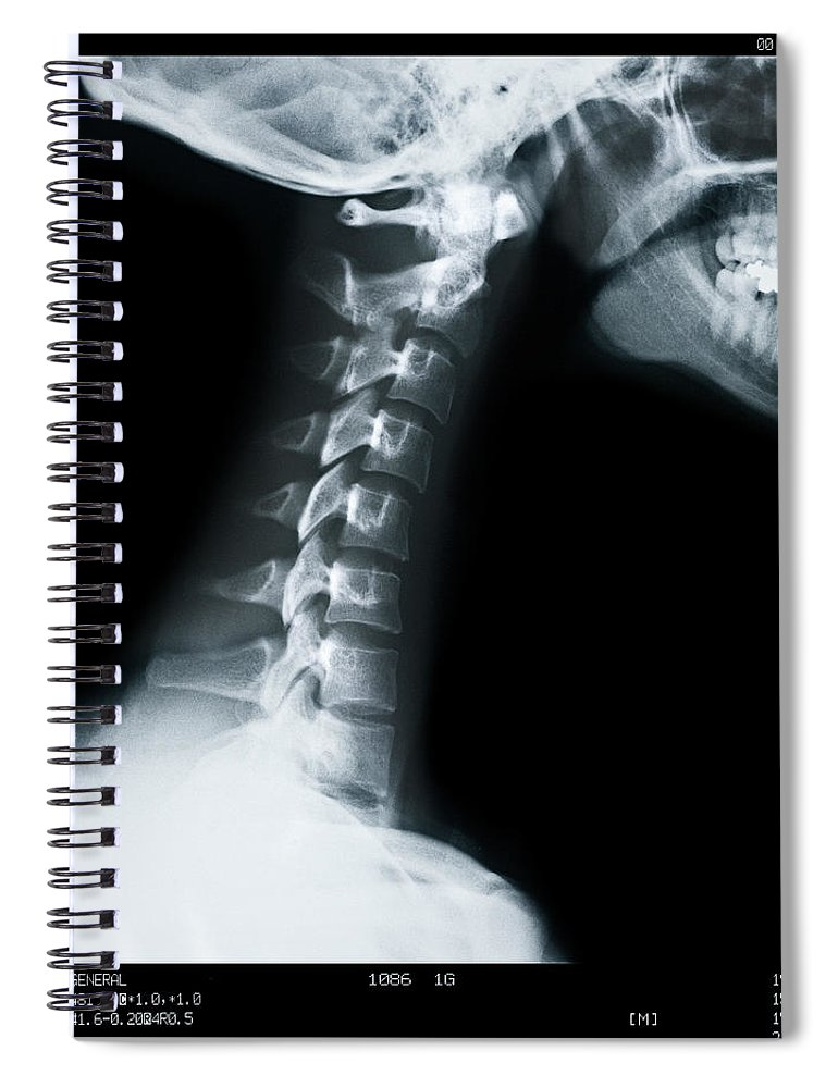 Human Vertebra Spiral Notebook featuring the photograph X Ray Of Neck Vertebrae by Anthony Bradshaw