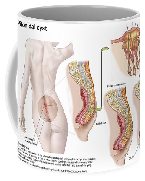 Medical Ilustration Of A Pilonidal Cyst Coffee Mug