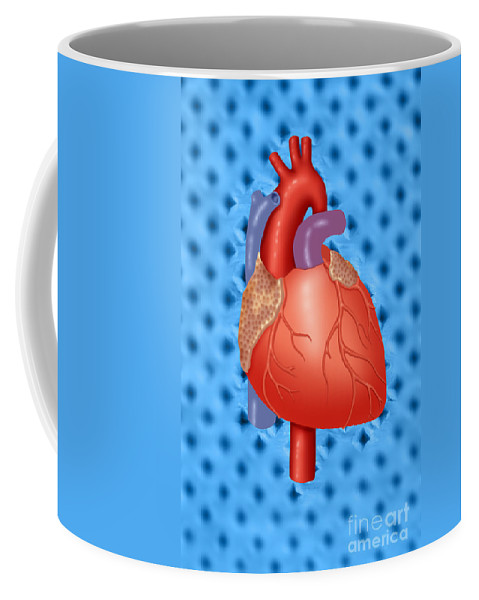 Anatomy Coffee Mug featuring the photograph Human Heart by Monica Schroeder / Science Source