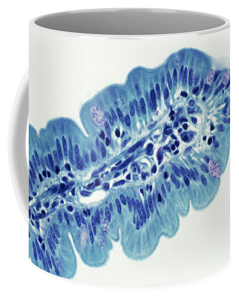 Histology Coffee Mug featuring the photograph Intestinal Villi Lm by Dr. Cecil H. Fox