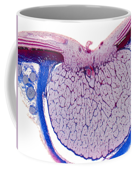 Optic Disk Coffee Mug featuring the photograph Optic Disk And Optic Nerve, Lm by Alvin Telser