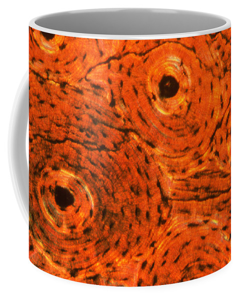 Bone Tissue Coffee Mug featuring the photograph Bone Tissue by Eric V. Grave