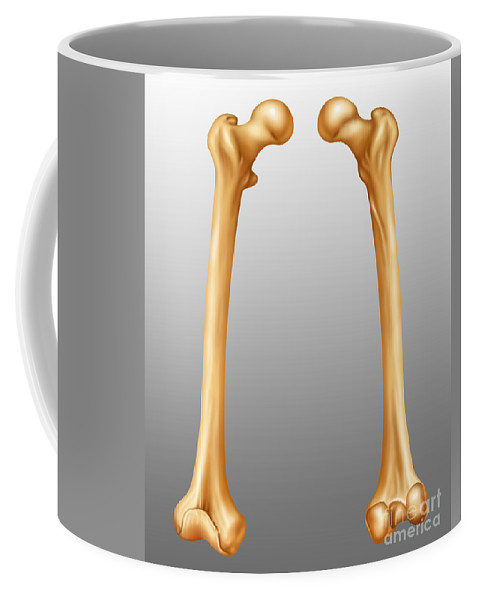 Science Coffee Mug featuring the photograph Femur, Anterior And Posterior View by Gwen Shockey