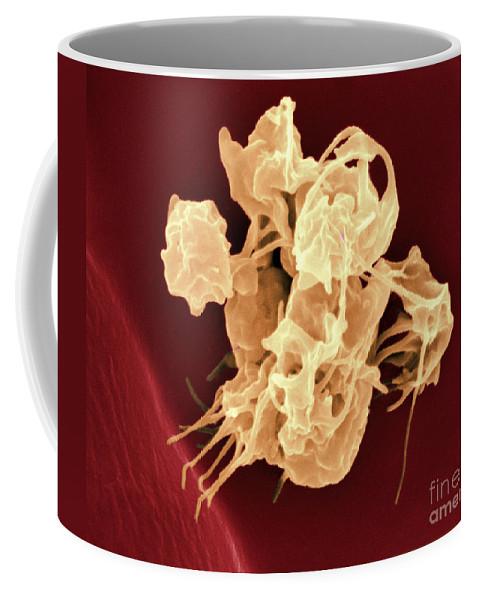 Thrombocyte Coffee Mug featuring the photograph Human Thrombocytes Platelets, Sem by Scimat