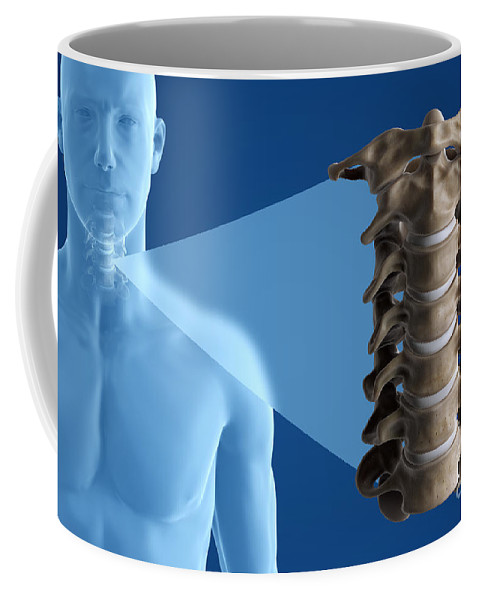 Digitally Generated Image Coffee Mug featuring the photograph Cervical Vertebrae by Science Picture Co