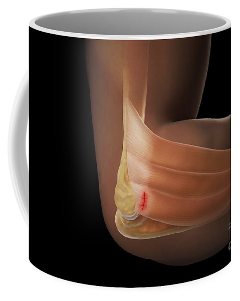 Digitally Generated Image Coffee Mug featuring the photograph Tennis Elbow by Science Picture Co
