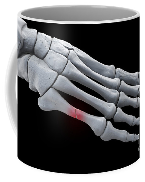 Digitally Generated Image Coffee Mug featuring the photograph Broken Metatarsal by Science Picture Co