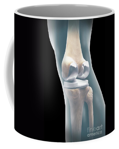 Digitally Generated Image Coffee Mug featuring the photograph Knee Replacement by Science Picture Co
