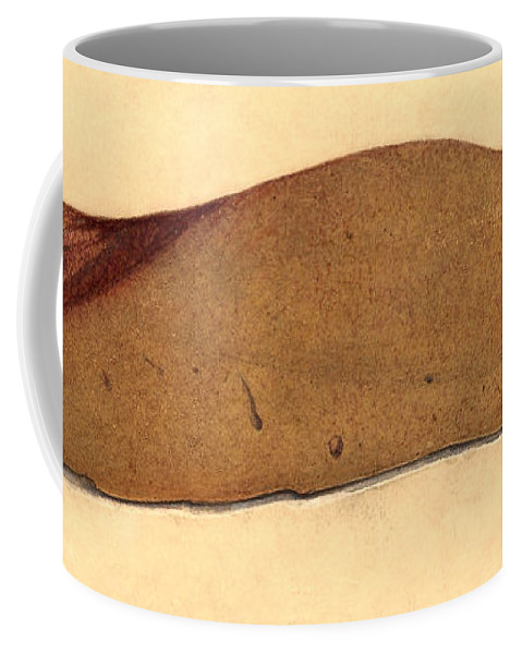 Historic Coffee Mug featuring the photograph Fatty Liver, Pathology, Illustration by Wellcome Images