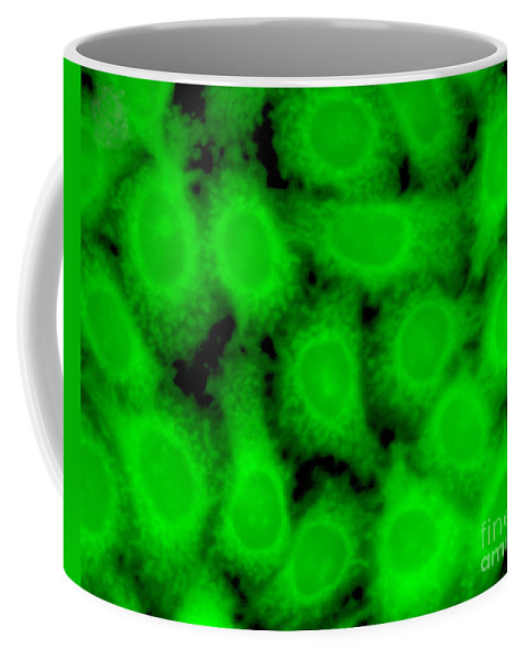 Science Coffee Mug featuring the photograph Human Glioma Cell Line by Science Source