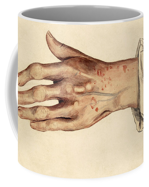 Historic Coffee Mug featuring the photograph Psoriasis Guttata, Illustration, 1887 by Wellcome Images