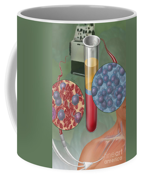 Stem Cell Transplantation Coffee Mug featuring the photograph Stem Cell Transplantation, Illustration by DNA Illustrations