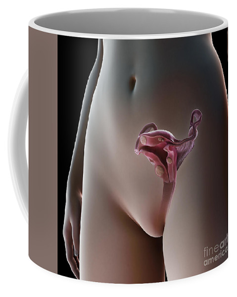 Digitally Generated Image Coffee Mug featuring the photograph Uterine Fibroids by Science Picture Co