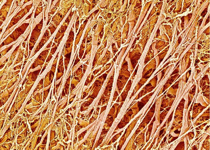 Connective Tissue Greeting Card featuring the photograph Connective Tissue, Sem by Science Photo Library