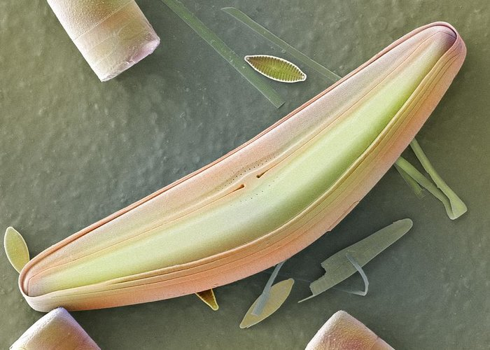 Alga Greeting Card featuring the photograph Diatom Frustules (sem) by Science Photo Library