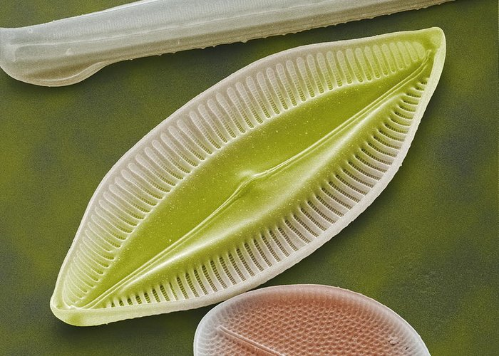 Navicula Palpebralis Greeting Card featuring the photograph Diatom, Sem by Power And Syred