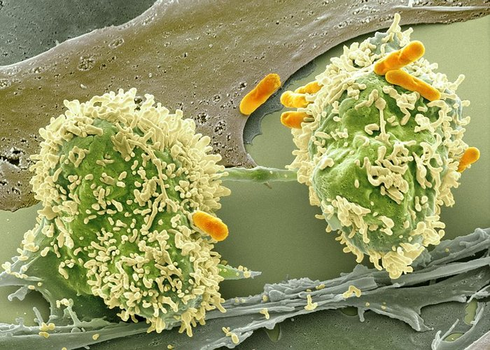 Abnormal Greeting Card featuring the photograph Dividing Cancer Cell, Sem by Science Photo Library