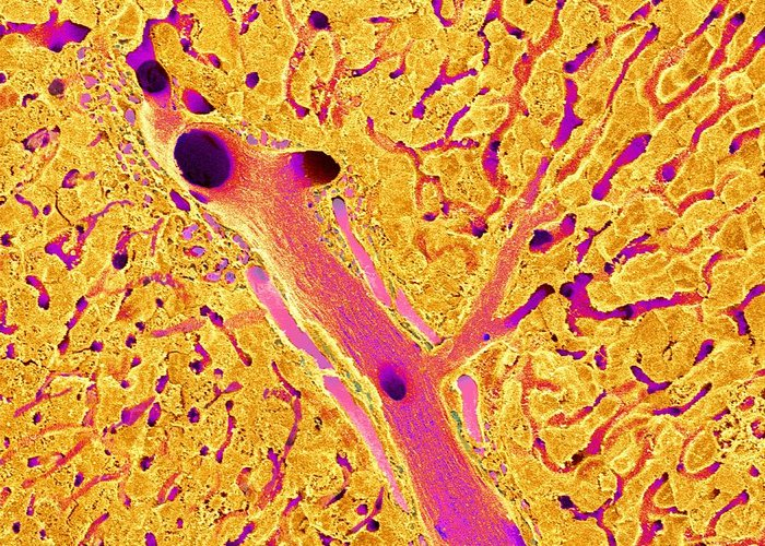 Vein Greeting Card featuring the photograph Liver, Sem by Science Photo Library