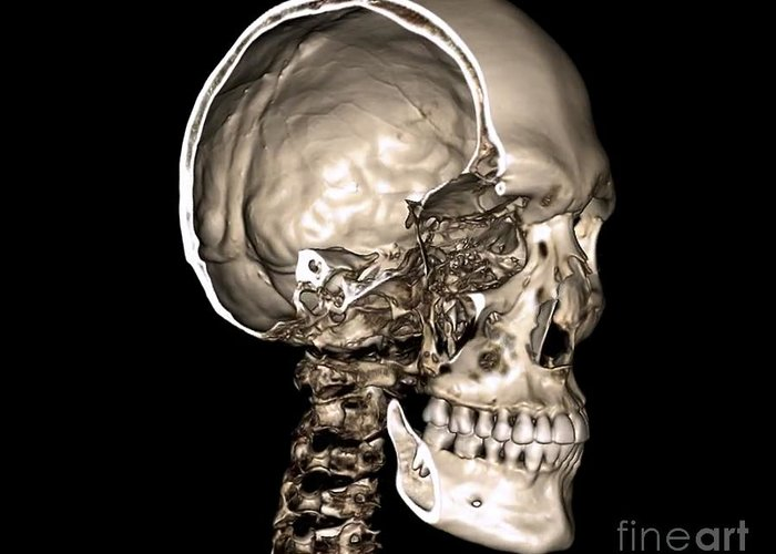 Normal Skull, 3d Ct Scan Greeting Card