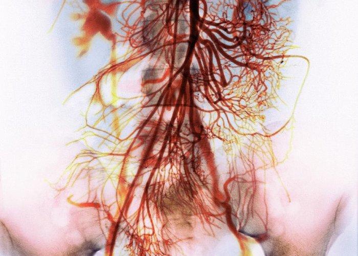 External Iliac Artery Greeting Cards Fine Art America