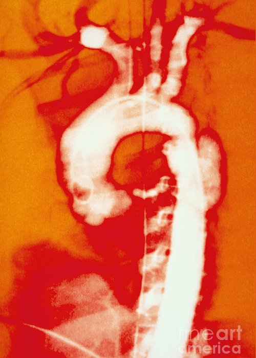 Biology Greeting Card featuring the photograph Aortic Aneurysm by Lunagrafix