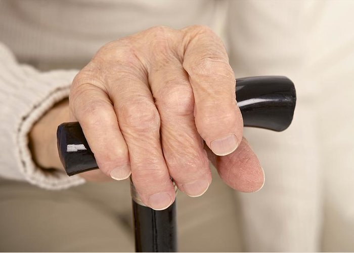 Arthritis Greeting Card featuring the photograph Arthritic Hand And Walking Stick by Science Photo Library