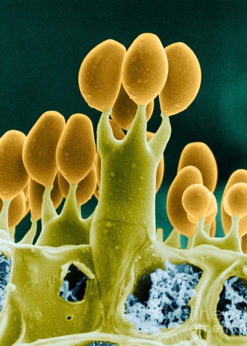 Basidiomycota Greeting Card featuring the photograph Basidiomycota Sem by Biophoto Associates