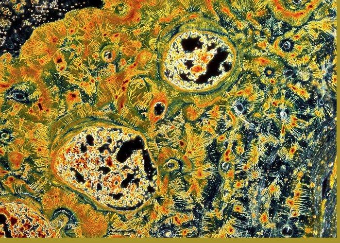 Darkfield Microscopy Greeting Cards