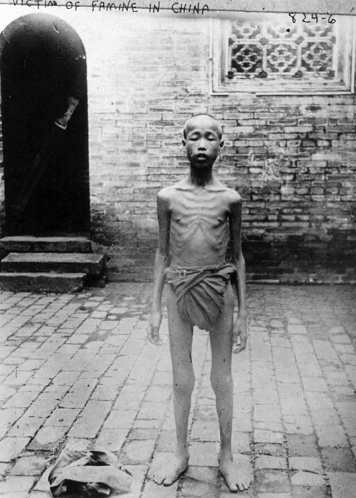 20th Century Greeting Card featuring the photograph China Famine Victim by Granger