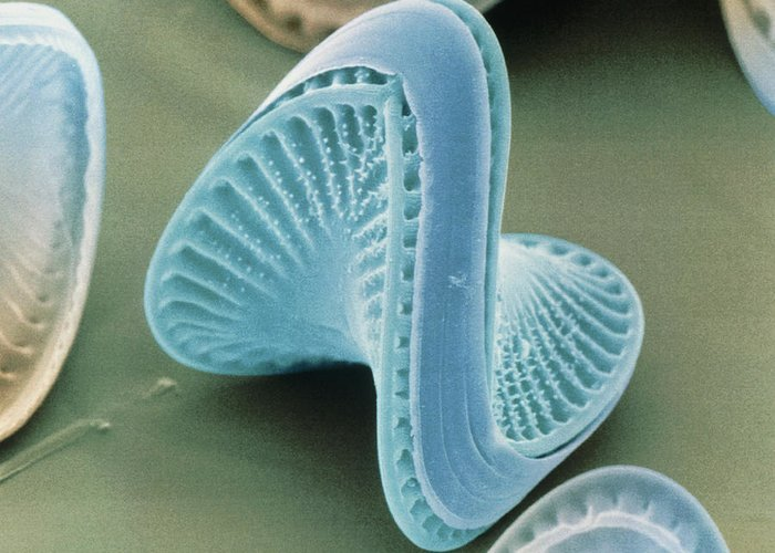 Diatom Greeting Card featuring the photograph Diatom Algae, Campylodiscus by Power And Syred