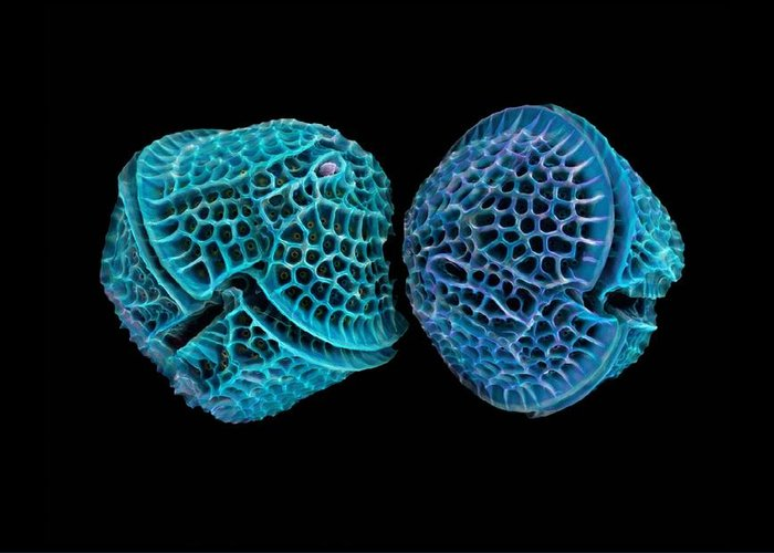 Alga Greeting Card featuring the photograph Diatoms, Sem by Science Photo Library