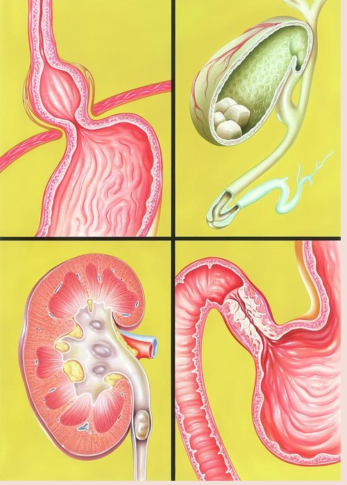 Excretory System Greeting Cards