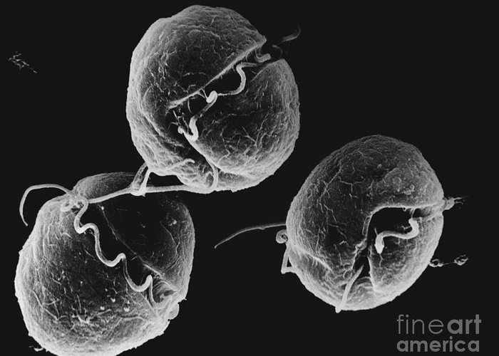 Algae Greeting Card featuring the photograph Dinoflagellate, Sem by David M. Phillips