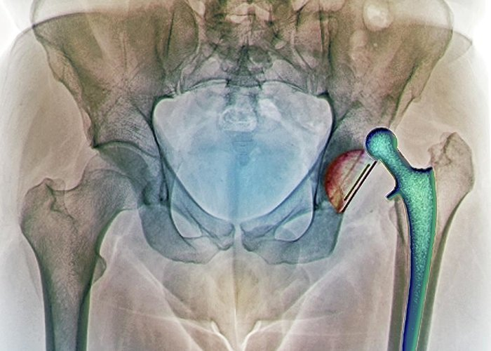 Artificial Greeting Card featuring the photograph Dislocated Hip Replacement, X-ray by Zephyr