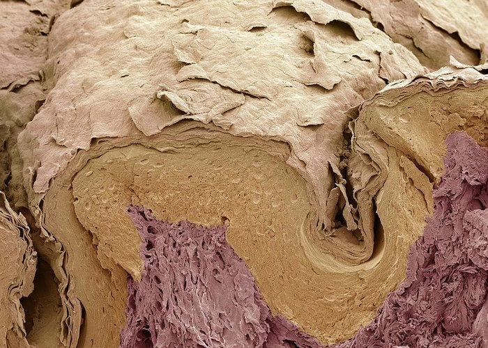 Scanning Electron Micrograph Greeting Card featuring the photograph Finger Skin, Sem by Science Photo Library