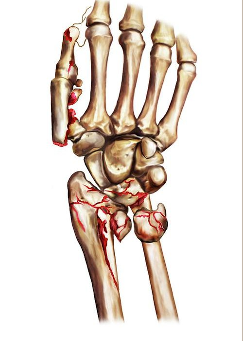 Fractured Wrist And Thumb Bones Greeting Card for Sale by John T. Alesi
