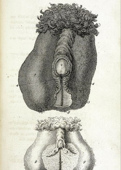 Hermaphrodite Sex Organs Greeting Card For Sale By British Library