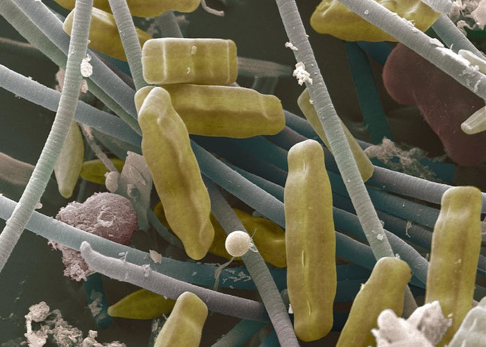 Navicula Sp. Greeting Card featuring the photograph Sem Of Diatoms And Blue-green Algae by Power And Syred