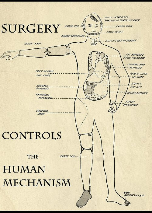 Medical Greeting Card featuring the digital art Surgery Controls The Human Mechanism  1906 by Daniel Hagerman