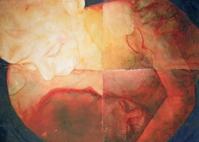 Wound By Graham Dean Greeting Card featuring the painting Wound by Graham Dean