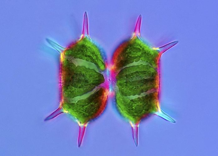 Algae Greeting Card featuring the photograph Xanthidium Desmids, Light Micrograph by Science Photo Library