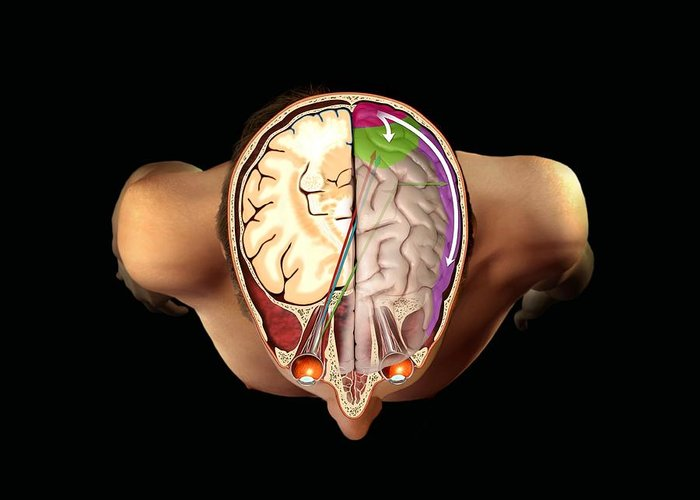 Brain Greeting Card featuring the photograph Brain And Vision, Artwork by Henning Dalhoff