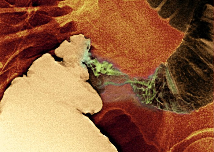 Medicine Greeting Card featuring the photograph Colon Cancer, X-ray by Du Cane Medical Imaging Ltd