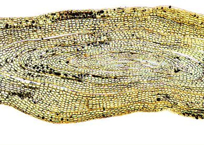 Anguilla Anguilla Greeting Card featuring the photograph Eel Scale, Light Micrograph by Dr Keith Wheeler