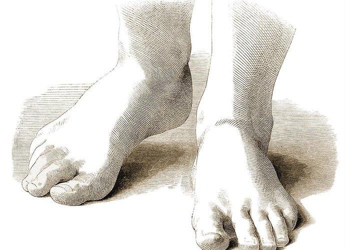 Anatomy Greeting Card featuring the photograph Feet, Artwork by Mehau Kulyk